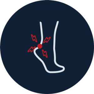 Achilles Tendonitis Doreen