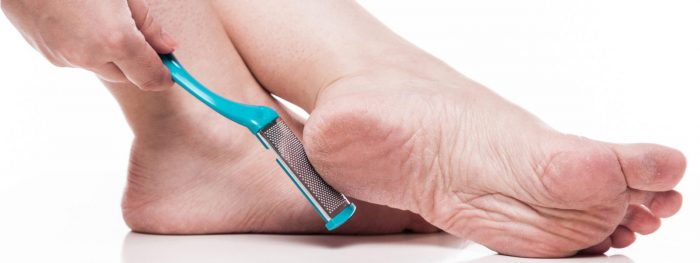 Corns and Calluses Treatment Epping & Doreen