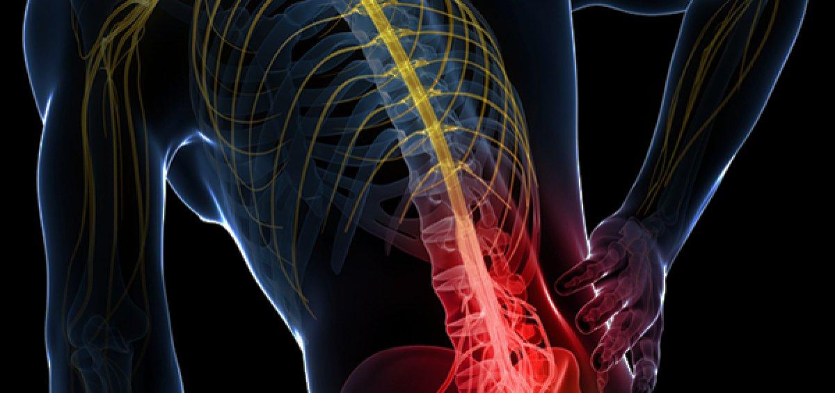 Lumbar Strain Epping